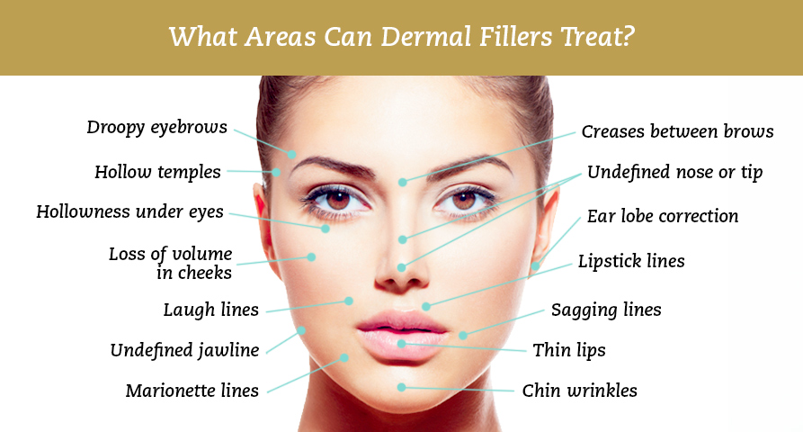 Areas on the face that can be treated with dermal fillers
