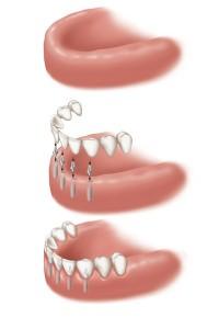 Implants edentulous