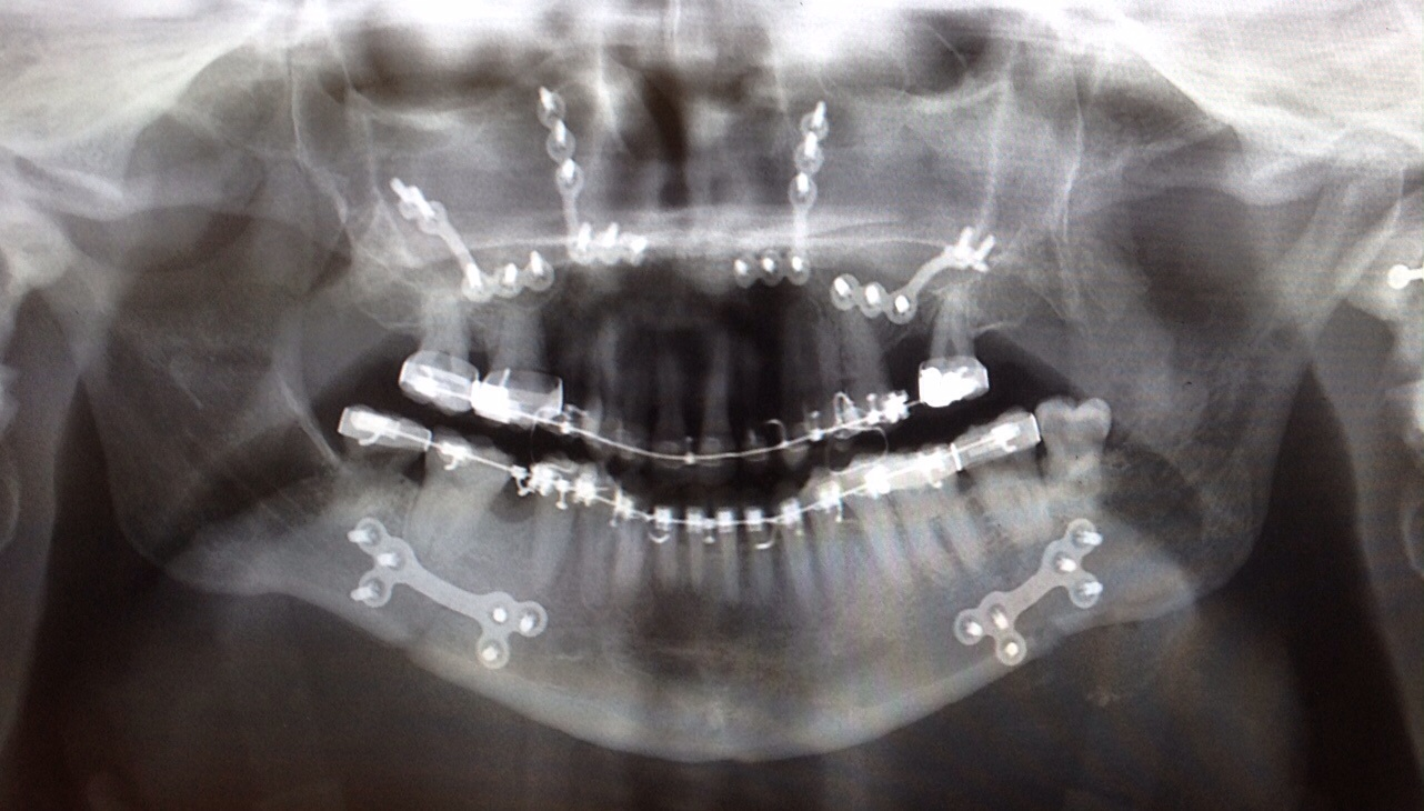 X-ray showing metal plates in the upper and lower jaws after surgery.