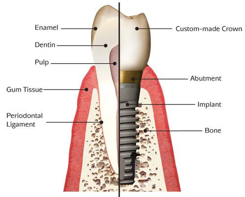 implant_anatomy-basic-pic