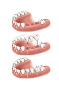 multiple dental implant