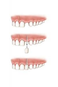 single implant tooth