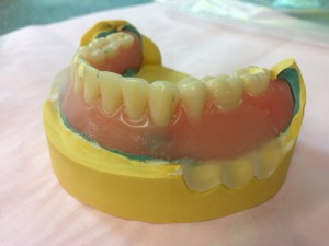Cast impression and denture