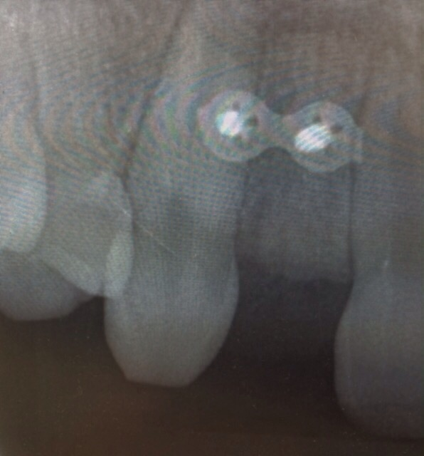 X-Ray showing plate and screws securing bone graft. Patient did not have sufficient bone for placement of implant and had to have bone augmentation of implant site before implant was placed.