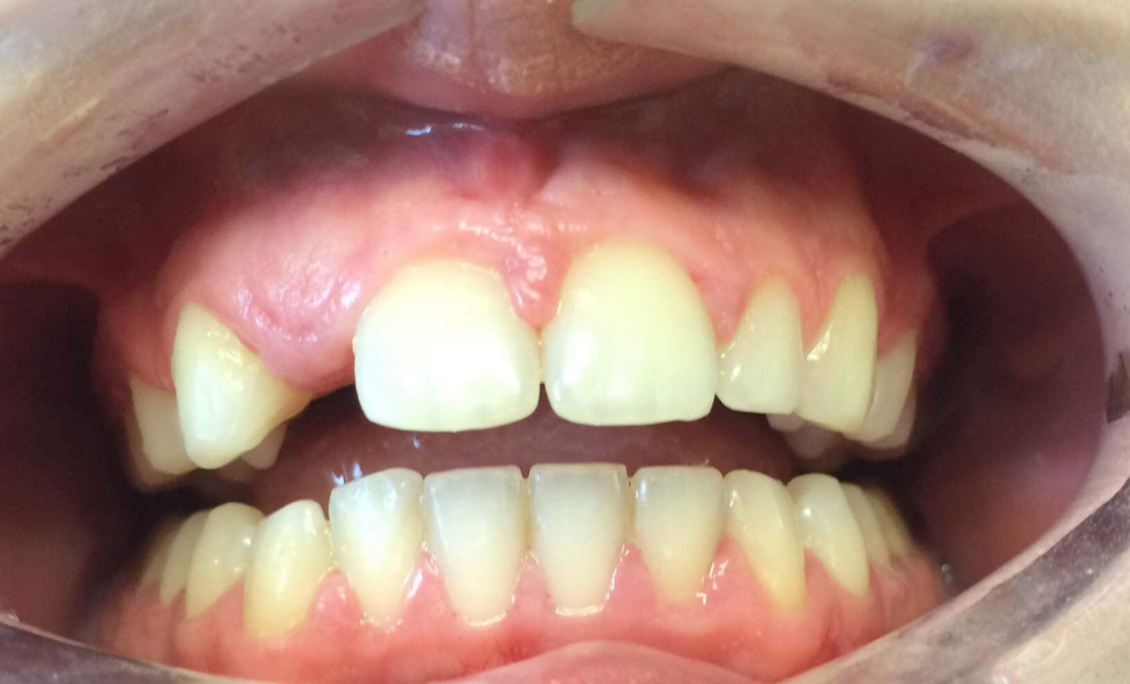 Missing upper lateral incisor